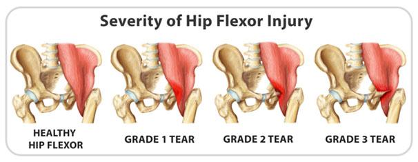 SPORTS MEDICINE: Hip flexor strain – a long term problem for hockey ...